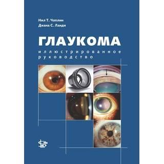 Глаукома. Иллюстрированное руководство Н.Т. Чоплин 2013 г. (gl)