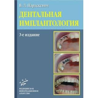 Дентальная имплантология 3-е изд. Параскевич В.Л. 2011 г. (МИА)