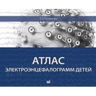 Атлас электроэнцефалограмм детей Полякова 2016 г. (МЕДпресс)