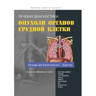 Лучевая диагностика. Опухоли органов грудной клетки Розадо-де-Кристенсон М.Л. Картер Б.В. 2018 г. (Издательство Панфилова)