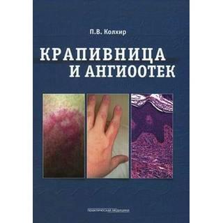 Крапивница и ангиоотек Колхир 2012 г. (Практическая медицина)