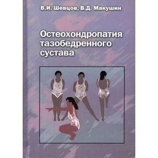 Остеохондропатия тазобедренного сустава Шевцов 2007 г. (Медицина)