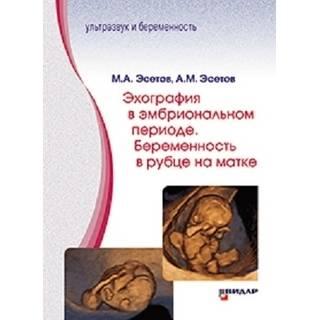 Эхография в эмбриональном периоде. Беременность в рубце на матке. М.А. Эсетов, А.М. Эсетов