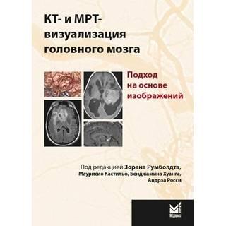 КТ- и МРТ- визуализация головного мозга. Подход на основе изображений Румболдт З. 2020 г. (МЕДпресс-информ)